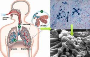 amianto-en-cuerpo